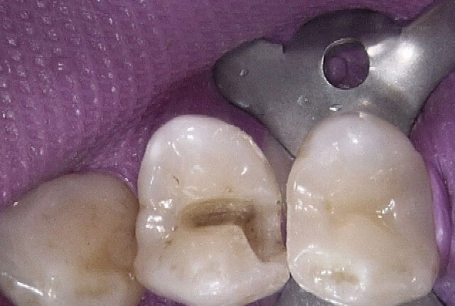 小さいアマルガムはむし歯になりにくいのが特徴ですが、水銀を含んでおり健康によいとはいえない材料です。ただし、体に悪いという根拠はまだ少ないようです。今回は、患者さんのご希望でダイレクトボンディングにやり替える治療を行いました。