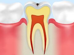 【CO】 ごく初期のむし歯