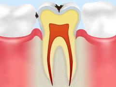 【C1】 エナメル質のむし歯