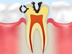 【C2】 象牙質のむし歯