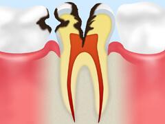 【C3】 神経に達したむし歯