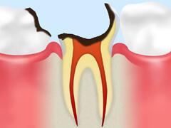 【C4】 歯根に達したむし歯