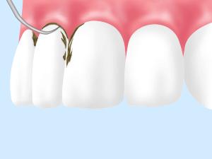 歯周病は、早期管理が最も大切です