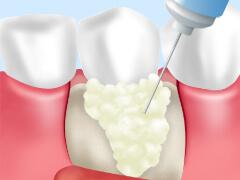 重度歯周病~歯周外科手術~