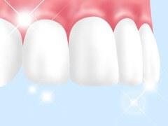歯のトリートメント
