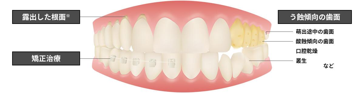 むし歯&知覚過敏から歯を守ろう!